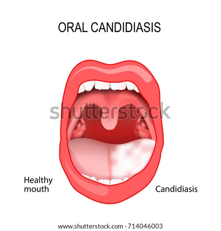 oral thrush diagram parts human mouth open mouth white stock vector 220669927 ... oral anatomy diagram