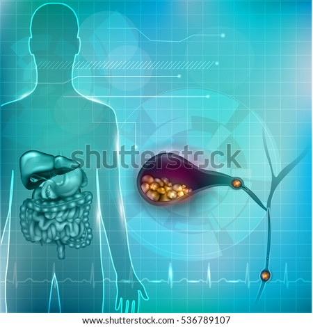 Stones in the Gallbladder and human silhouette with surrounding organs bright detailed illustration on an abstract technology mesh background and light cardiogram.