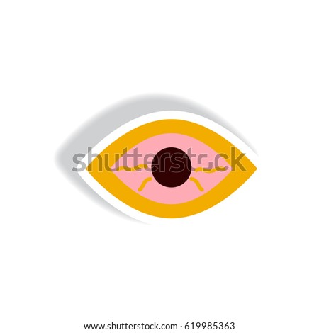 eye disorders essay In addition, health care workers, laboratory and janitorial staff, and other workers  may be at risk of acquiring infectious diseases from eye exposure.