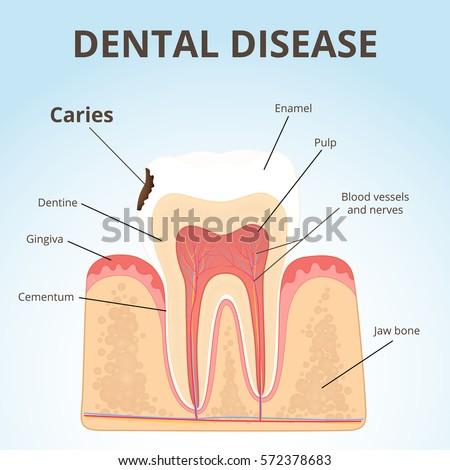 physiology of periodontal and dental problems essay Physiology of periodontal and dental problems essay examples physiology of periodontal and dental problems essay examples length: 1695 words (48 double-spaced pages) rating: powerful essays open document essay preview accumulation of inflammatory cells and their products which then leads to deterioration of the bone component the terms.