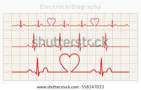 Vector Heart cardiogram charts set