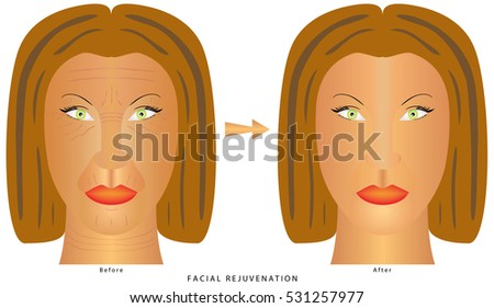 Woman's face before and after plastic surgery, cosmetic and aesthetic procedures. Anti-aging procedures, rejuvenation, lifting, tightening of facial skin, restoration of youthful skin anti-wrinkle